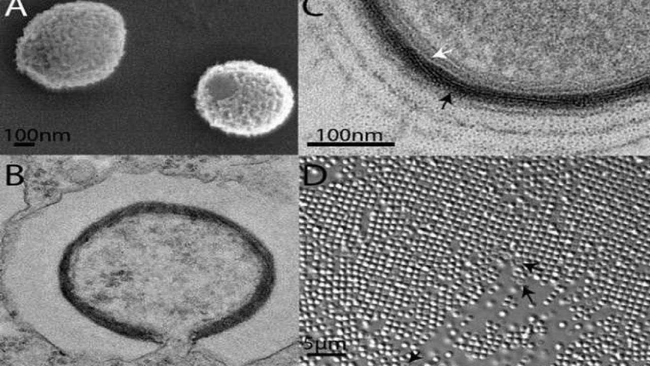 Imagens de microscopia eletrônica do Mollivirus sibericum