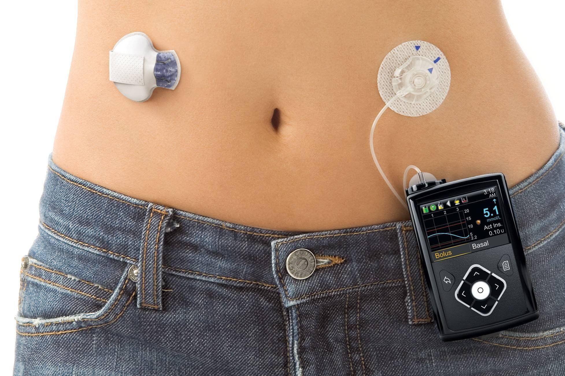 "O MiniMed 670g, o primeiro ""pancreas artificial"""
