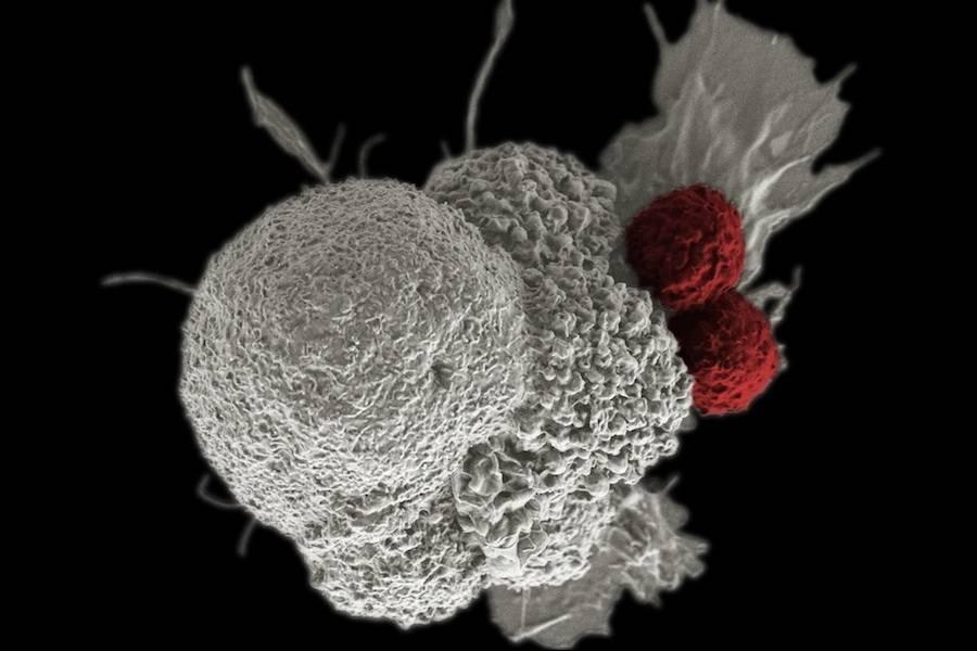 Célula cancerígena (a branco) sendo atacada por dois linfócitos T citotóxicos (a vermelho) num processo natural de resposta imune