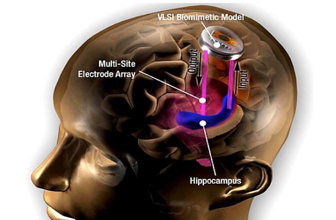 O hipocampo é uma região chave do cºerebro, envolvida na formação e armazenamento da memória