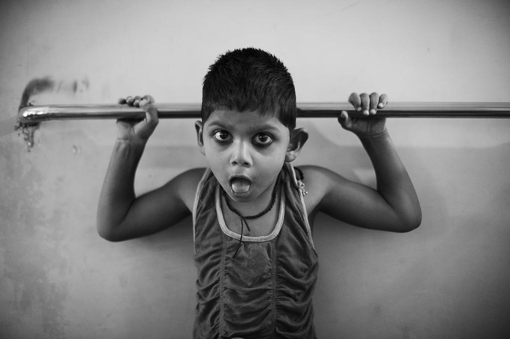 Sayma, uma criança com microcefalia, não consegue falar. Na foto, durante o seu exercício diário para fortalecer os músculos dos braços.